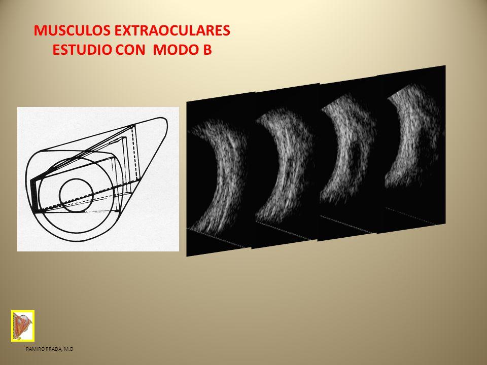 MUSCULOS EXTRAOCULARES ESTUDIO CON MODO B RAMIRO PRADA, M.D