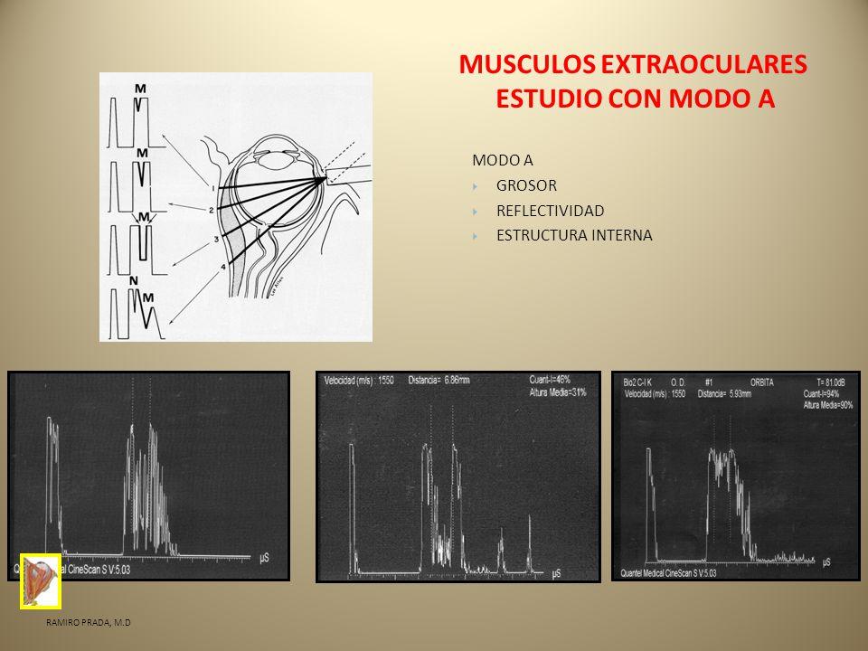 MUSCULOS EXTRAOCULARES ESTUDIO CON MODO A MODO A GROSOR REFLECTIVIDAD ESTRUCTURA INTERNA RAMIRO PRADA, M.D