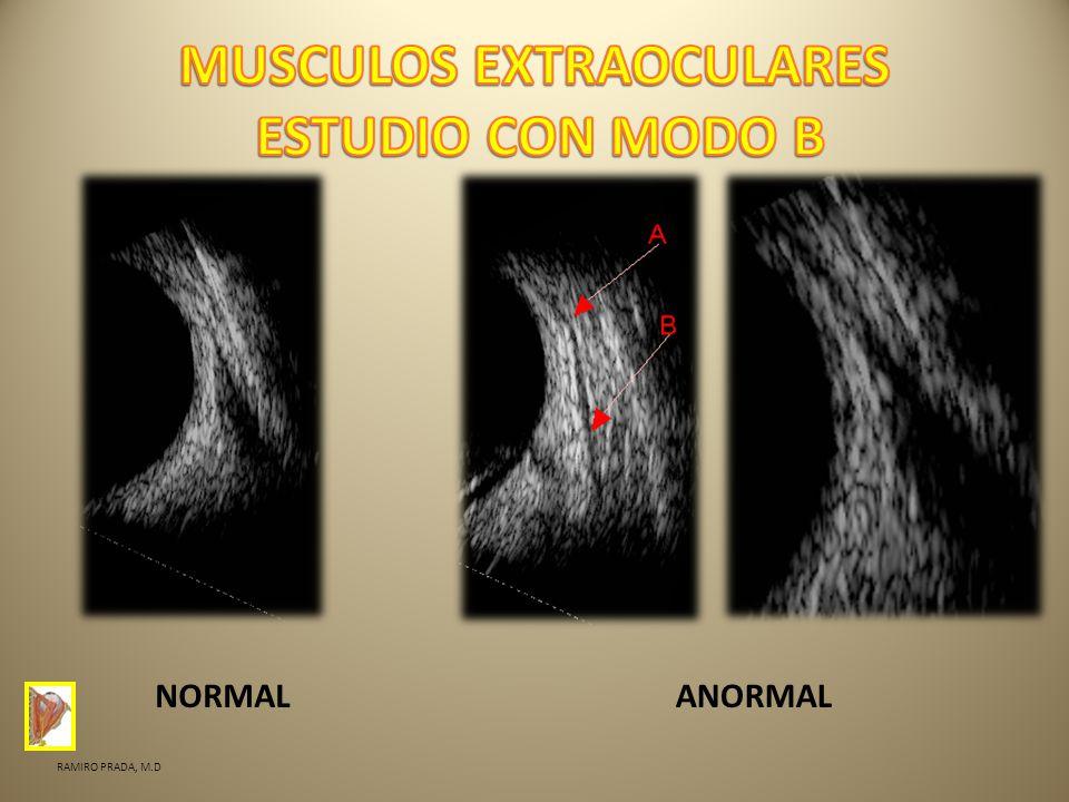 NORMALANORMAL RAMIRO PRADA, M.D