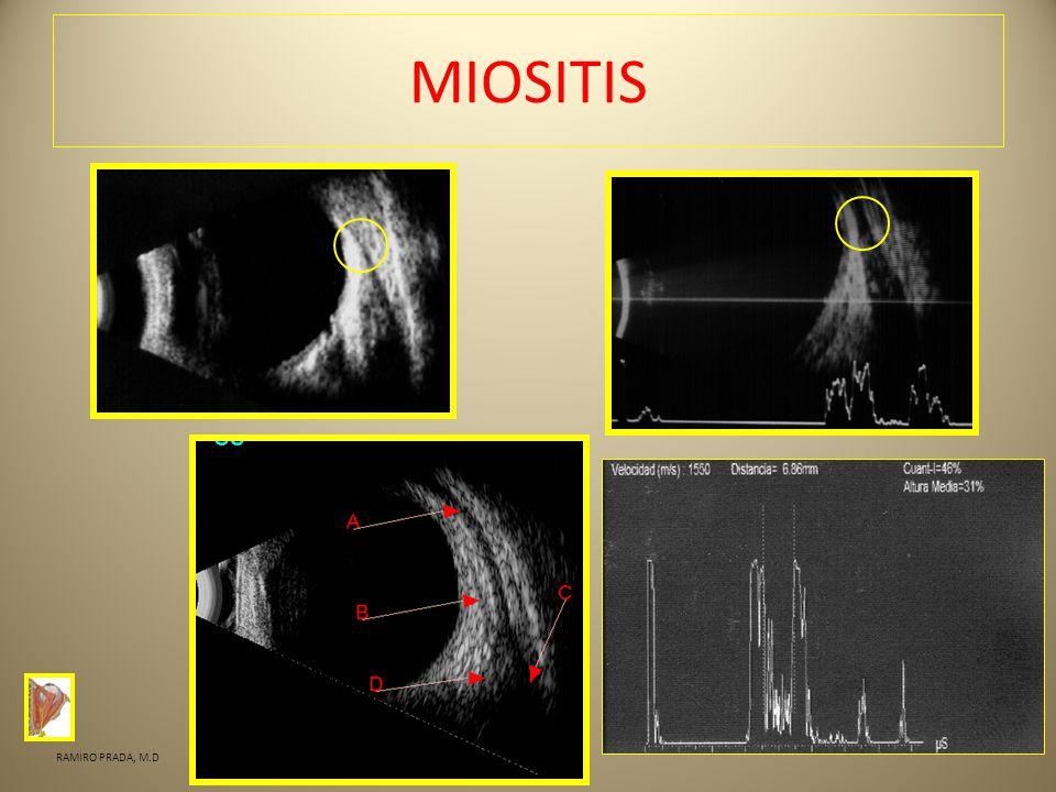 MIOSITIS