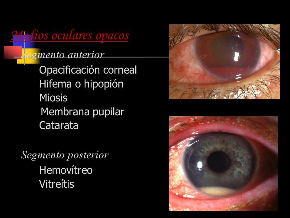 Indicaciones Ecografía Medios oculares opacos Segmento anterior Opacificación corneal Hifema o hipopión Miosis Membrana pupilar Catarata Segmento post