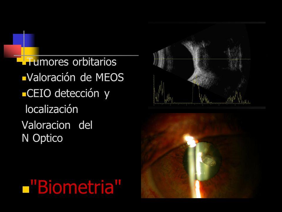 Otras Indicaciones Tumores orbitarios Valoración de MEOS CEIO detección y localización Valoracion del N Optico