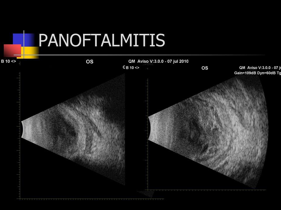 PANOFTALMITIS