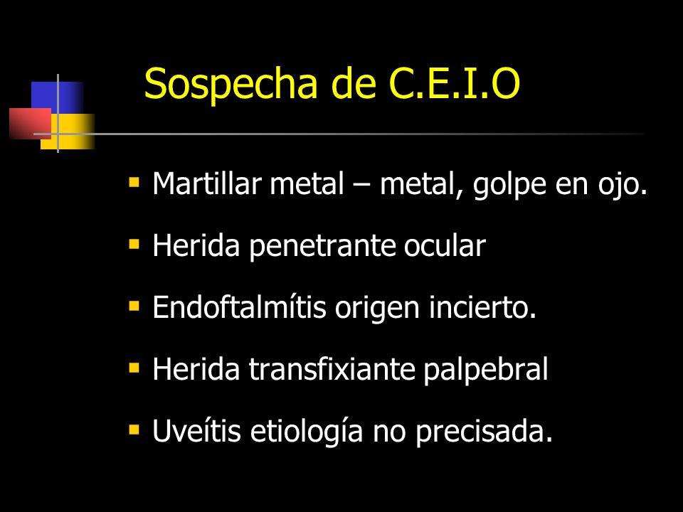 Ecos Vítreos: Hemo V/s Endo.HEMOVITREO Reflectividad.