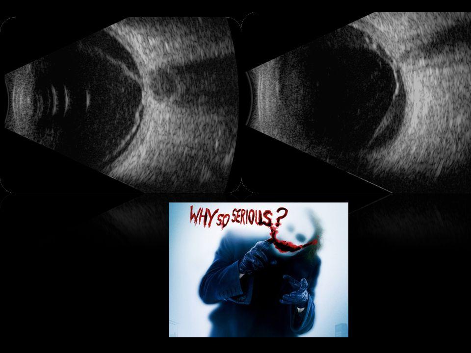 Técnica de Exámen con B-scan En manos entrenadas el US puede documentar y diagnosticar una gran gama de patologías oculares y orbitarias.