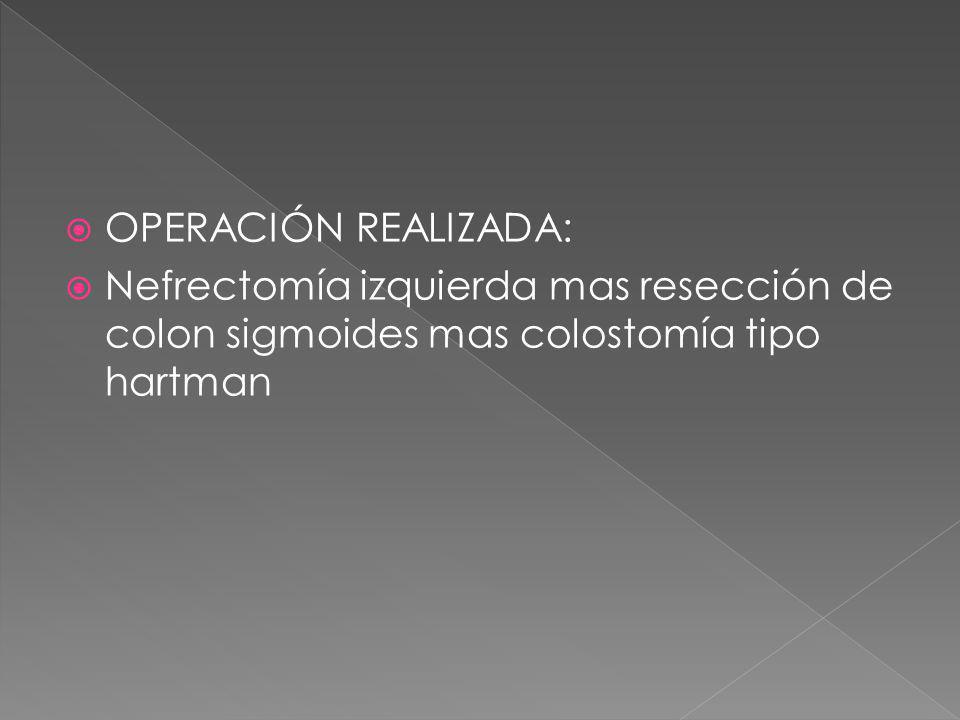 OPERACIÓN REALIZADA: Nefrectomía izquierda mas resección de colon sigmoides mas colostomía tipo hartman