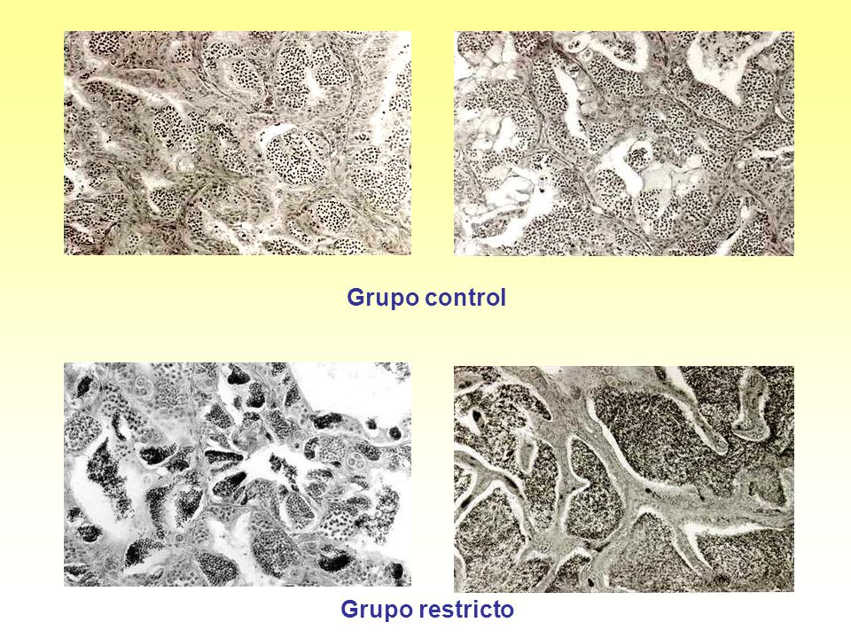 Grupo control Grupo restricto