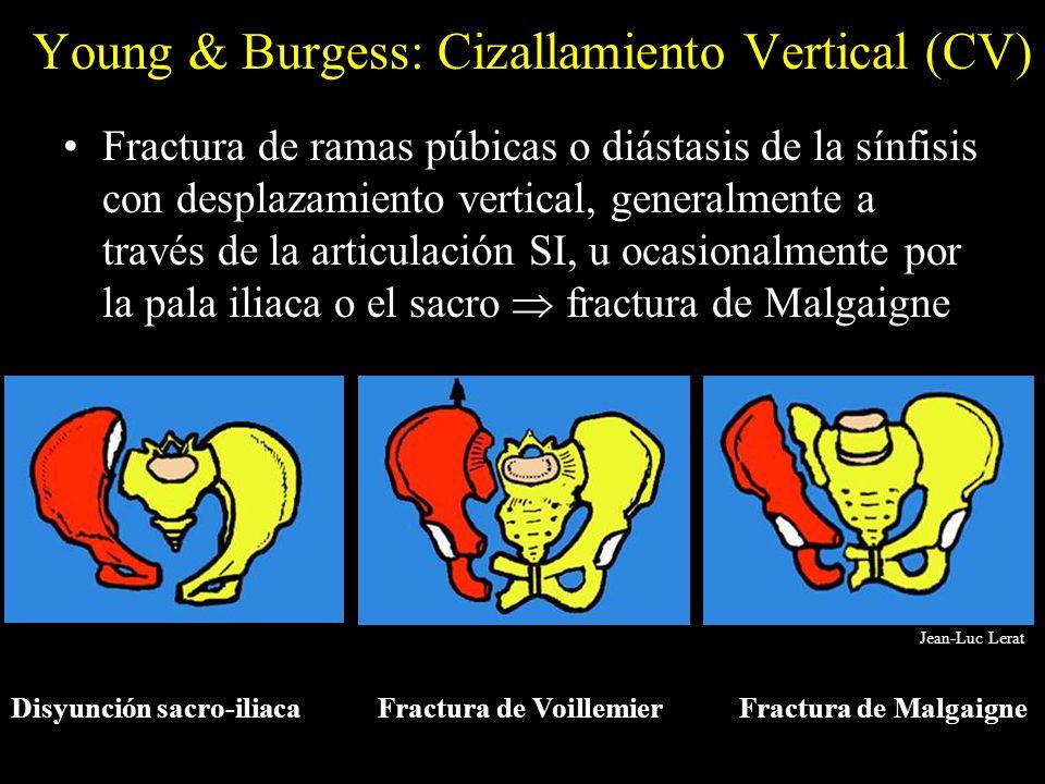 Young & Burgess: Cizallamiento Vertical (CV) Fractura de ramas púbicas o diástasis de la sínfisis con desplazamiento vertical, generalmente a través d