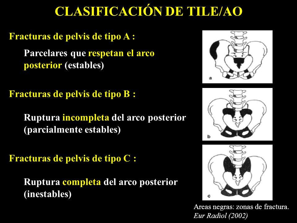 Fracturas de pelvis de tipo A : Parcelares que respetan el arco posterior (estables) Fracturas de pelvis de tipo B : Ruptura incompleta del arco poste