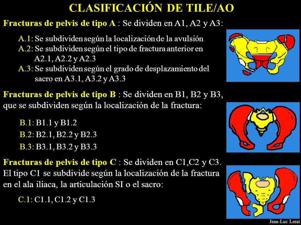 Fracturas de pelvis de tipo A : Se dividen en A1, A2 y A3: A.1: Se subdividen según la localización de la avulsión A.2: Se subdividen según el tipo de