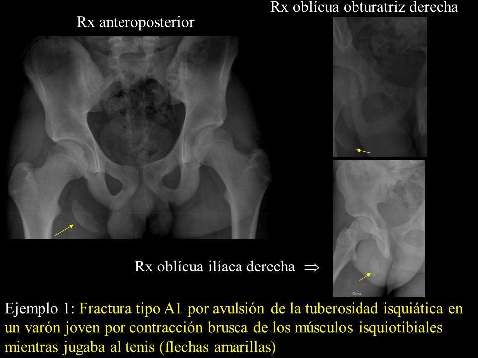 Rx anteroposterior Rx oblícua obturatriz derecha Ejemplo 1: Fractura tipo A1 por avulsión de la tuberosidad isquiática en un varón joven por contracci