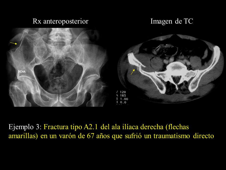 Ejemplo 3: Fractura tipo A2.1 del ala ilíaca derecha (flechas amarillas) en un varón de 67 años que sufrió un traumatismo directo Rx anteroposteriorIm