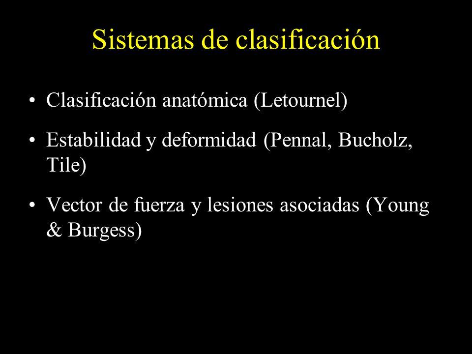 Clasificación anatómica (Letournel) Estabilidad y deformidad (Pennal, Bucholz, Tile) Vector de fuerza y lesiones asociadas (Young & Burgess)