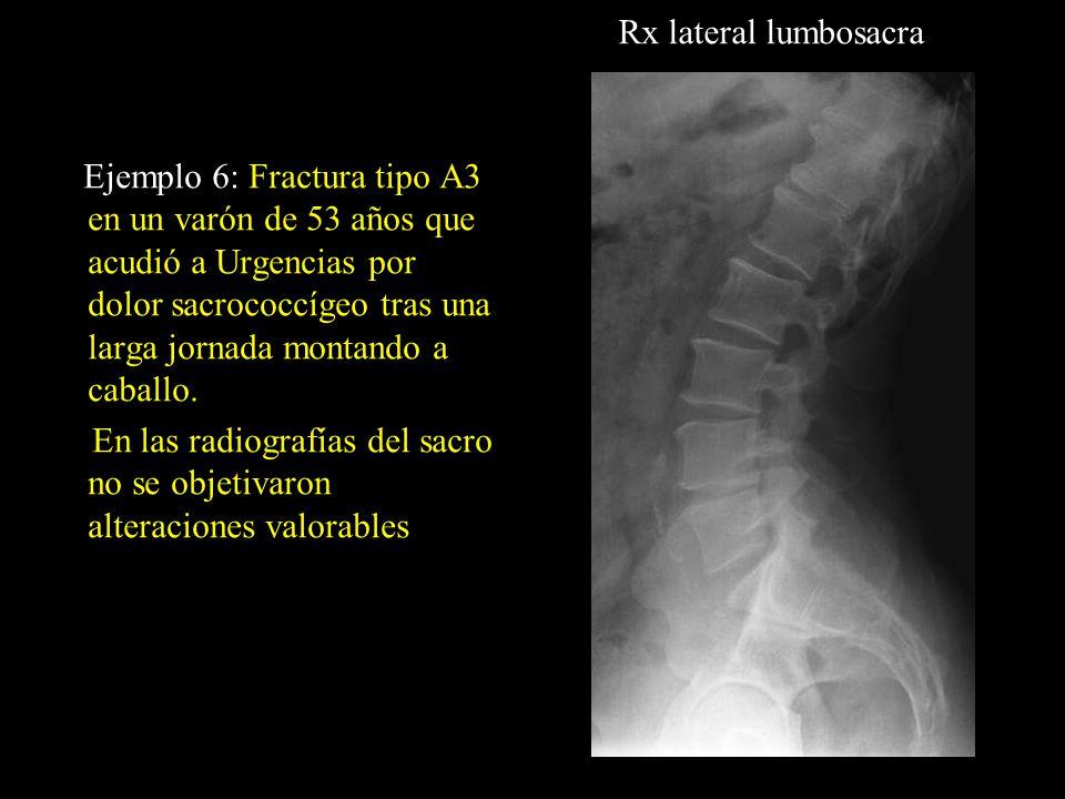 Ejemplo 6: Fractura tipo A3 en un varón de 53 años que acudió a Urgencias por dolor sacrococcígeo tras una larga jornada montando a caballo. En las ra
