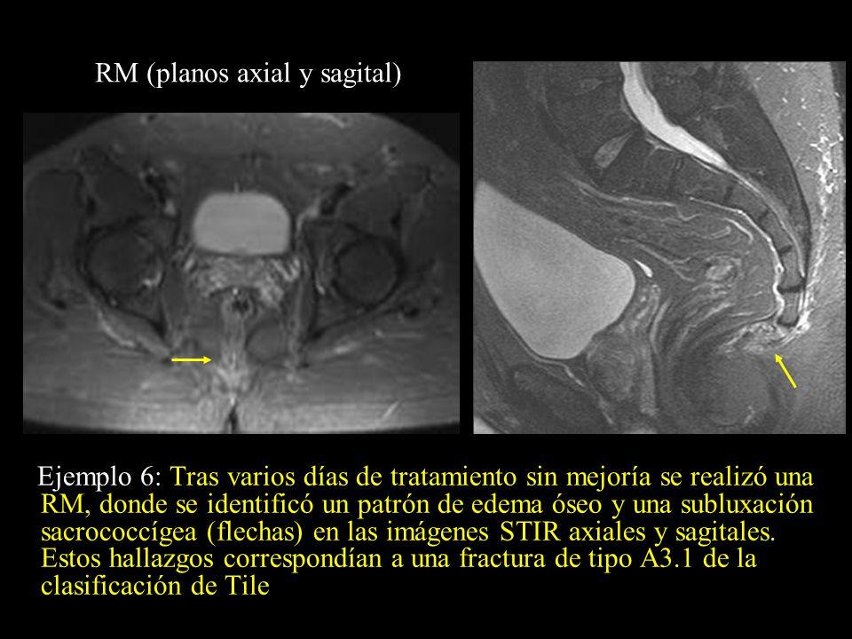 Ejemplo 6: Tras varios días de tratamiento sin mejoría se realizó una RM, donde se identificó un patrón de edema óseo y una subluxación sacrococcígea
