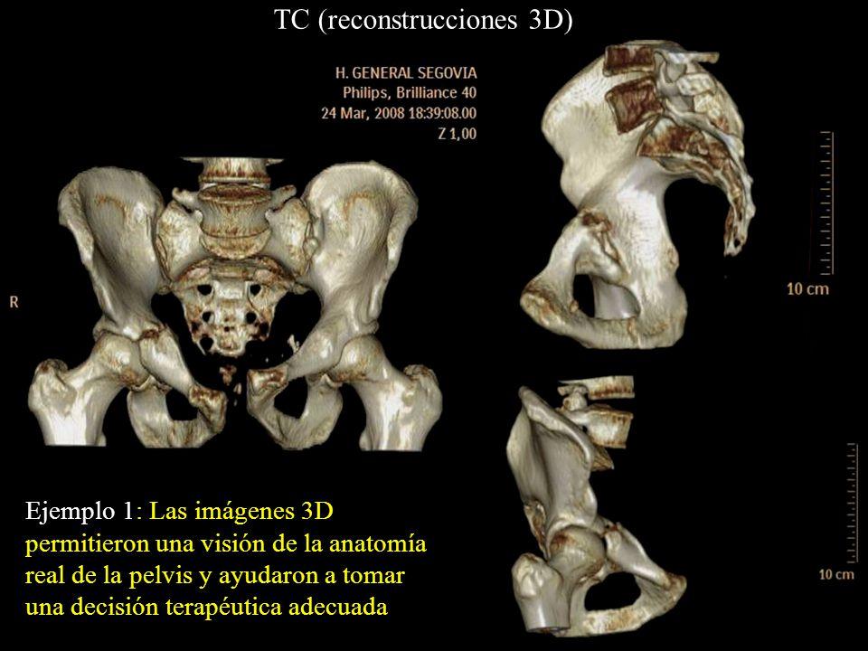 Ejemplo 1: Las imágenes 3D permitieron una visión de la anatomía real de la pelvis y ayudaron a tomar una decisión terapéutica adecuada TC (reconstruc
