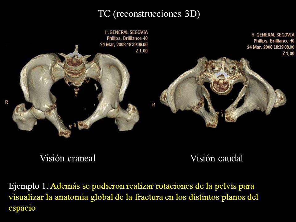 Ejemplo 1: Además se pudieron realizar rotaciones de la pelvis para visualizar la anatomía global de la fractura en los distintos planos del espacio T