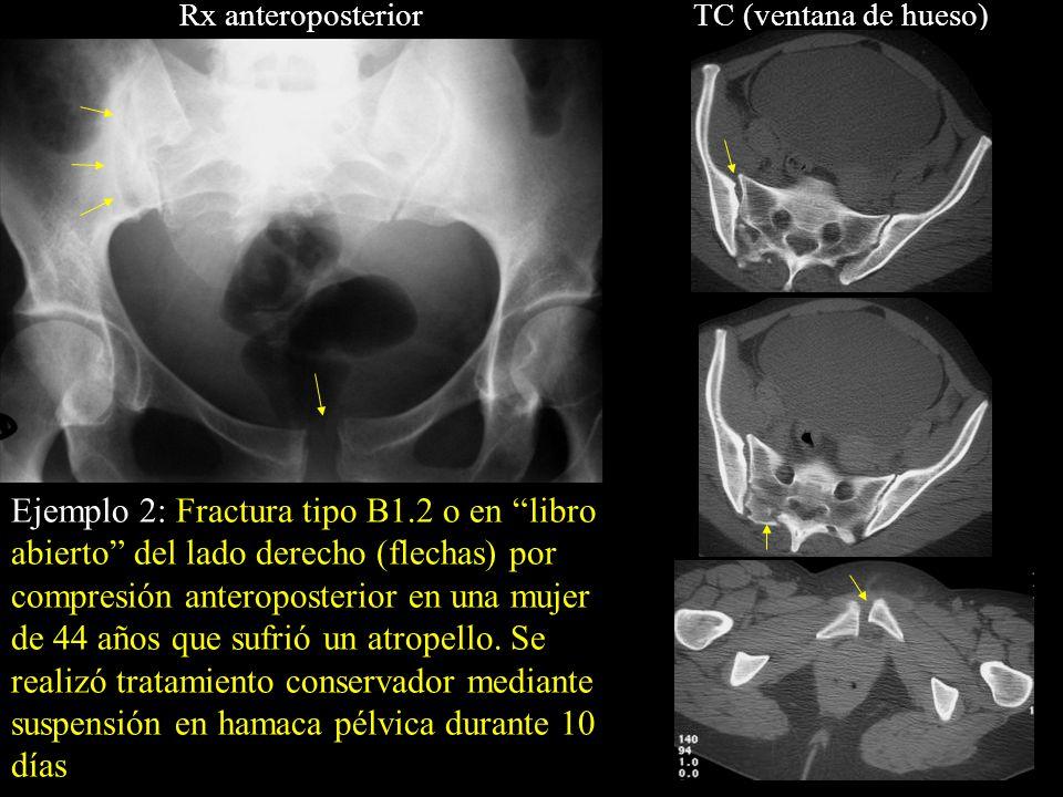 Rx anteroposteriorTC (ventana de hueso) Ejemplo 2: Fractura tipo B1.2 o en libro abierto del lado derecho (flechas) por compresión anteroposterior en