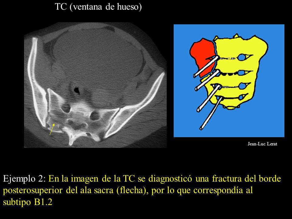 TC (ventana de hueso) Ejemplo 2: En la imagen de la TC se diagnosticó una fractura del borde posterosuperior del ala sacra (flecha), por lo que corres