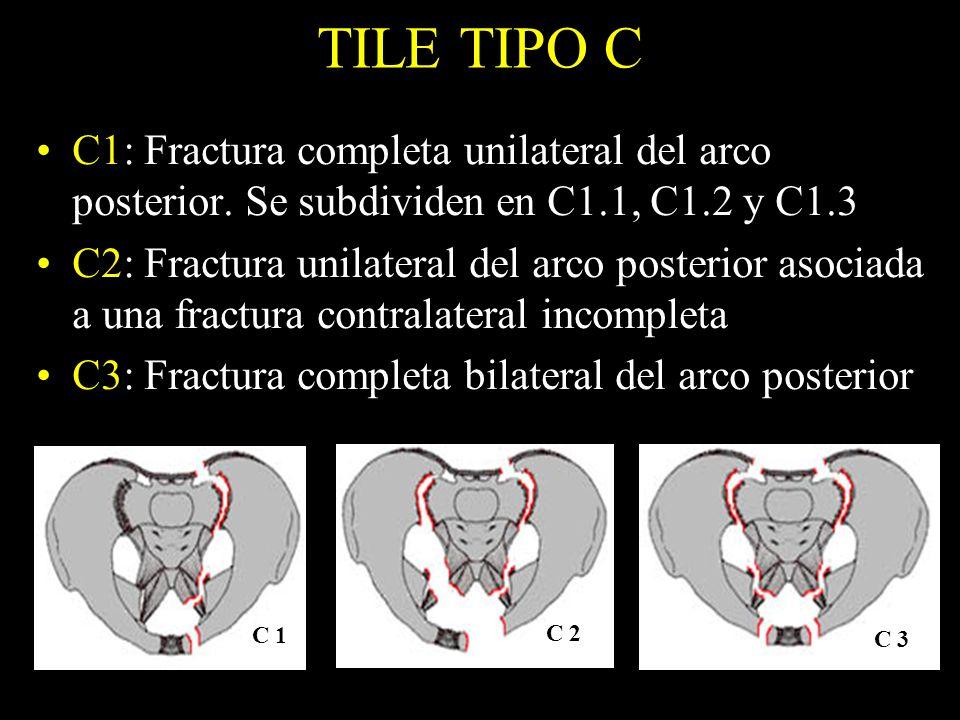 TILE TIPO C C1: Fractura completa unilateral del arco posterior. Se subdividen en C1.1, C1.2 y C1.3 C2: Fractura unilateral del arco posterior asociad