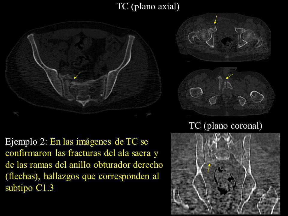 Ejemplo 2: En las imágenes de TC se confirmaron las fracturas del ala sacra y de las ramas del anillo obturador derecho (flechas), hallazgos que corre
