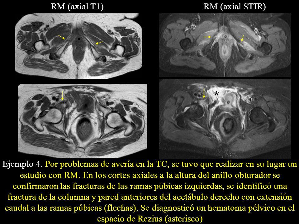 RM (axial T1)RM (axial STIR) Ejemplo 4: Por problemas de avería en la TC, se tuvo que realizar en su lugar un estudio con RM. En los cortes axiales a