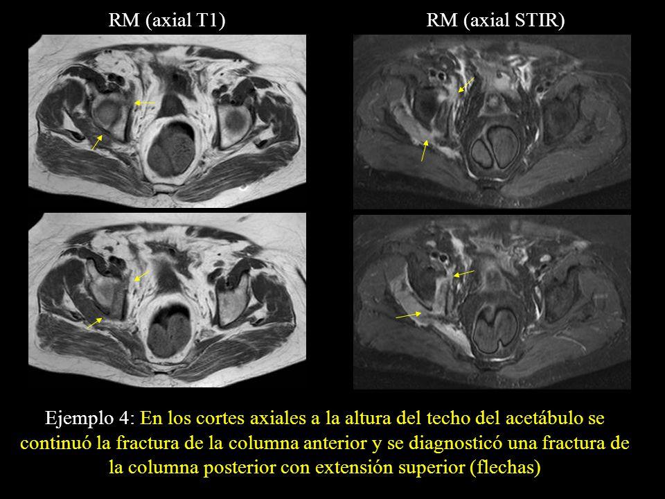 RM (axial T1)RM (axial STIR) Ejemplo 4: En los cortes axiales a la altura del techo del acetábulo se continuó la fractura de la columna anterior y se