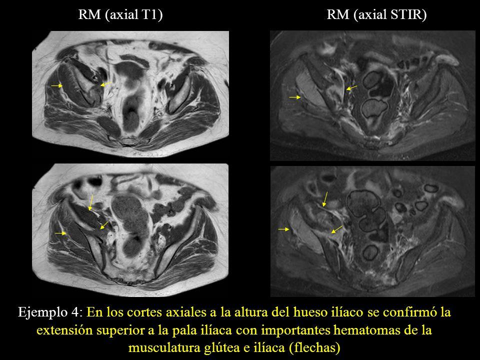 RM (axial T1)RM (axial STIR) Ejemplo 4: En los cortes axiales a la altura del hueso ilíaco se confirmó la extensión superior a la pala ilíaca con impo