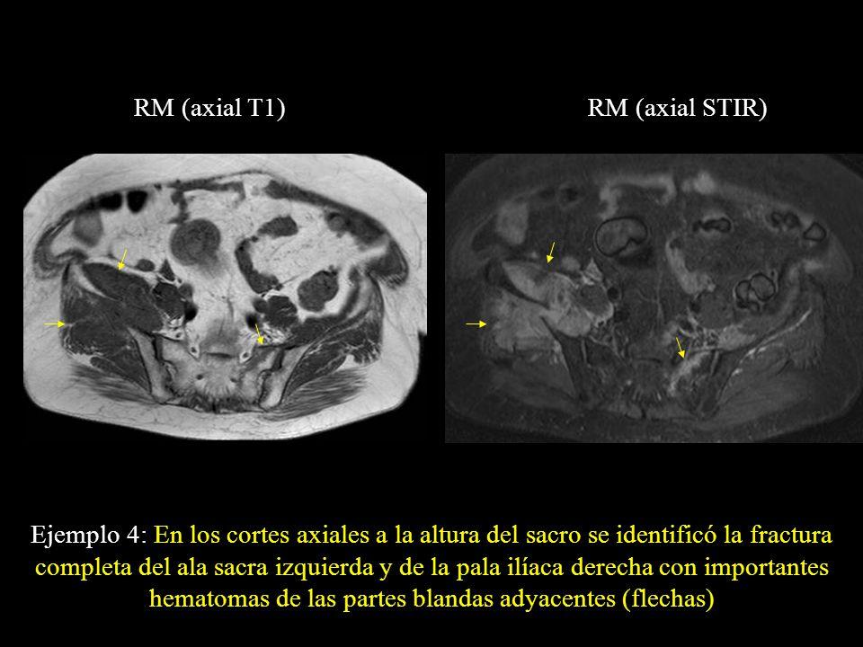 RM (axial T1)RM (axial STIR) Ejemplo 4: En los cortes axiales a la altura del sacro se identificó la fractura completa del ala sacra izquierda y de la