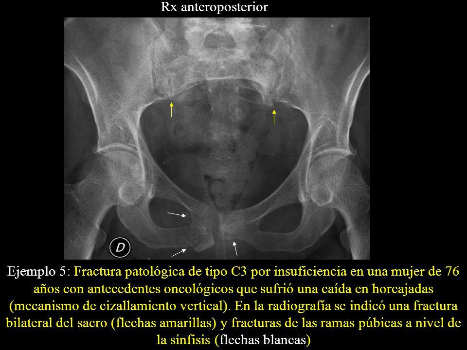 Ejemplo 5: Fractura patológica de tipo C3 por insuficiencia en una mujer de 76 años con antecedentes oncológicos que sufrió una caída en horcajadas (m