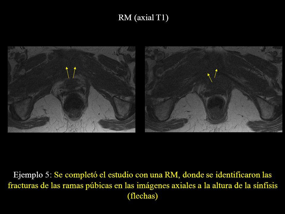 RM (axial T1) Ejemplo 5: Se completó el estudio con una RM, donde se identificaron las fracturas de las ramas púbicas en las imágenes axiales a la alt