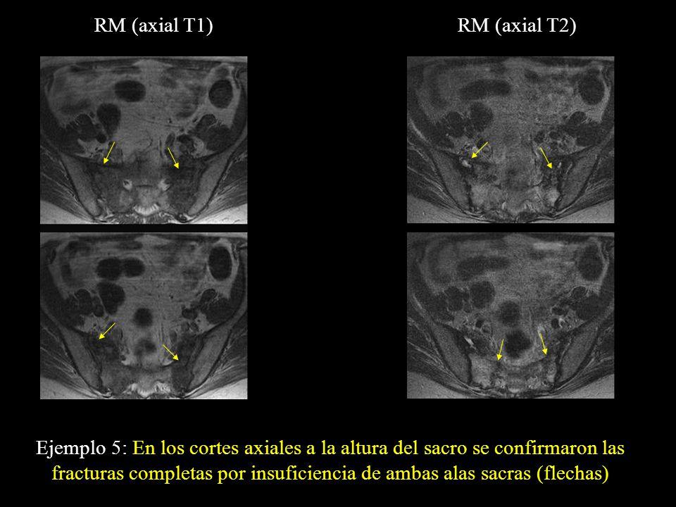 Ejemplo 5: En los cortes axiales a la altura del sacro se confirmaron las fracturas completas por insuficiencia de ambas alas sacras (flechas) RM (axi