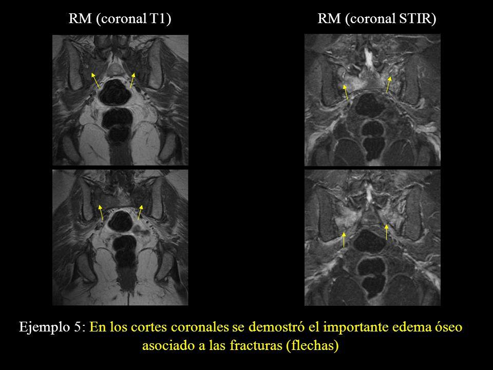 Ejemplo 5: En los cortes coronales se demostró el importante edema óseo asociado a las fracturas (flechas) RM (coronal T1)RM (coronal STIR)