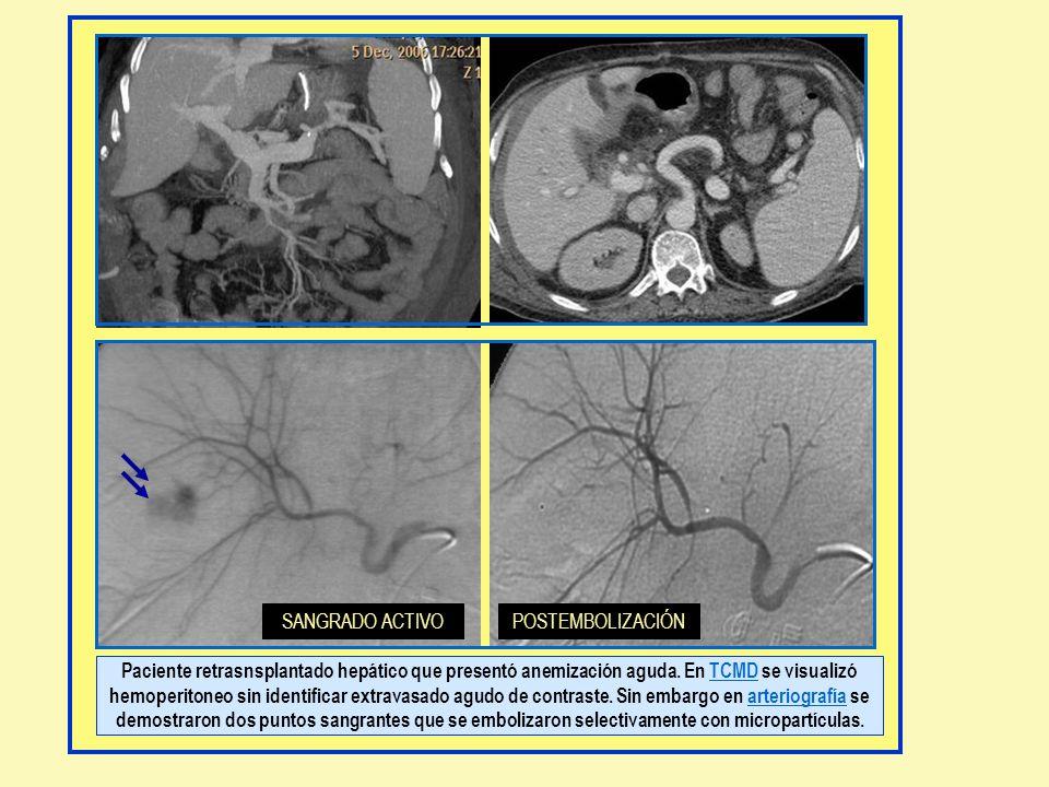 Paciente retrasnsplantado hepático que presentó anemización aguda. En TCMD se visualizó hemoperitoneo sin identificar extravasado agudo de contraste.