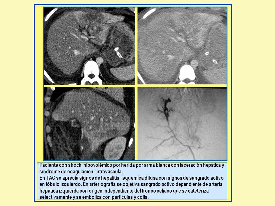 Paciente con shock hipovolémico por herida por arma blanca con laceración hepática y síndrome de coagulación intravascular. En TAC se aprecia signos d
