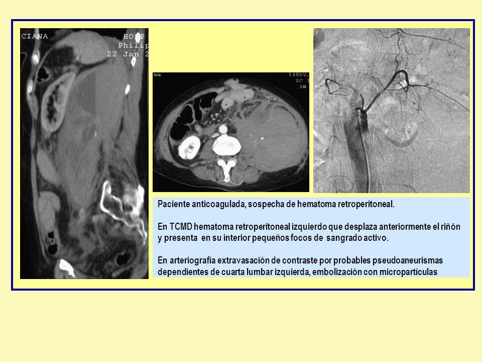 Paciente anticoagulada, sospecha de hematoma retroperitoneal. En TCMD hematoma retroperitoneal izquierdo que desplaza anteriormente el riñón y present