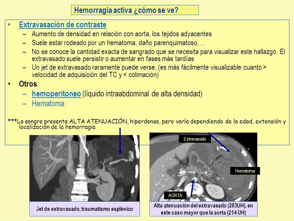 Extravasación de contraste –Aumento de densidad en relación con aorta, los tejidos adyacentes –Suele estar rodeado por un hematoma, daño parenquimatos