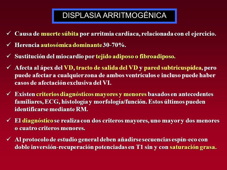 Causa de muerte súbita por arritmia cardiaca, relacionada con el ejercicio. Causa de muerte súbita por arritmia cardiaca, relacionada con el ejercicio