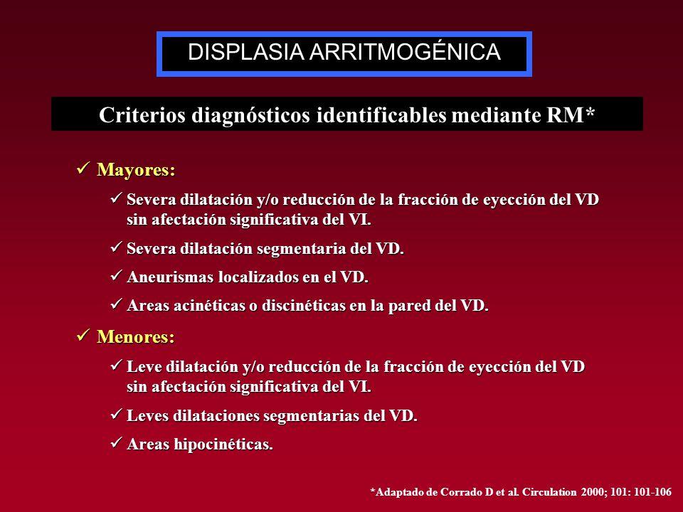 Mayores: Mayores: Severa dilatación y/o reducción de la fracción de eyección del VD sin afectación significativa del VI. Severa dilatación y/o reducci