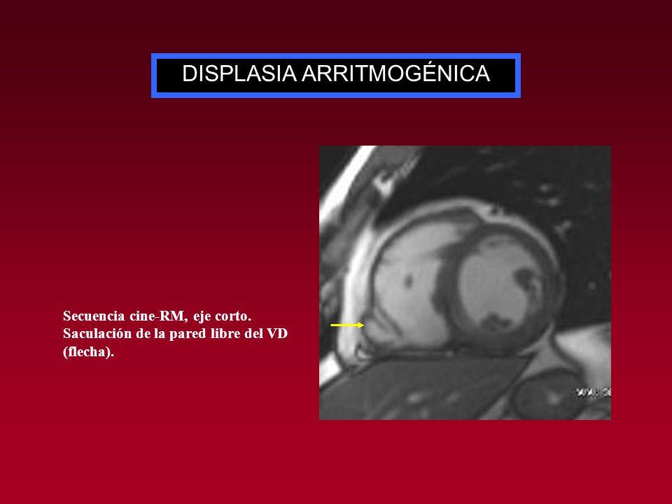 DISPLASIA ARRITMOGÉNICA Secuencia cine-RM, eje corto. Saculación de la pared libre del VD (flecha).