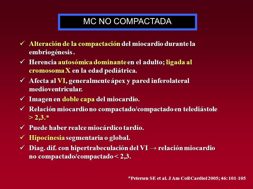 Alteración de la compactación del miocardio durante la embriogénesis. Alteración de la compactación del miocardio durante la embriogénesis. Herencia a