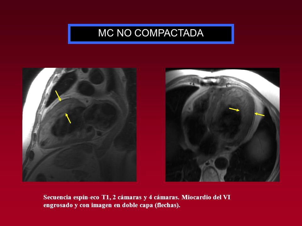 MC NO COMPACTADA Secuencia espín-eco T1, 2 cámaras y 4 cámaras. Miocardio del VI engrosado y con imagen en doble capa (flechas).