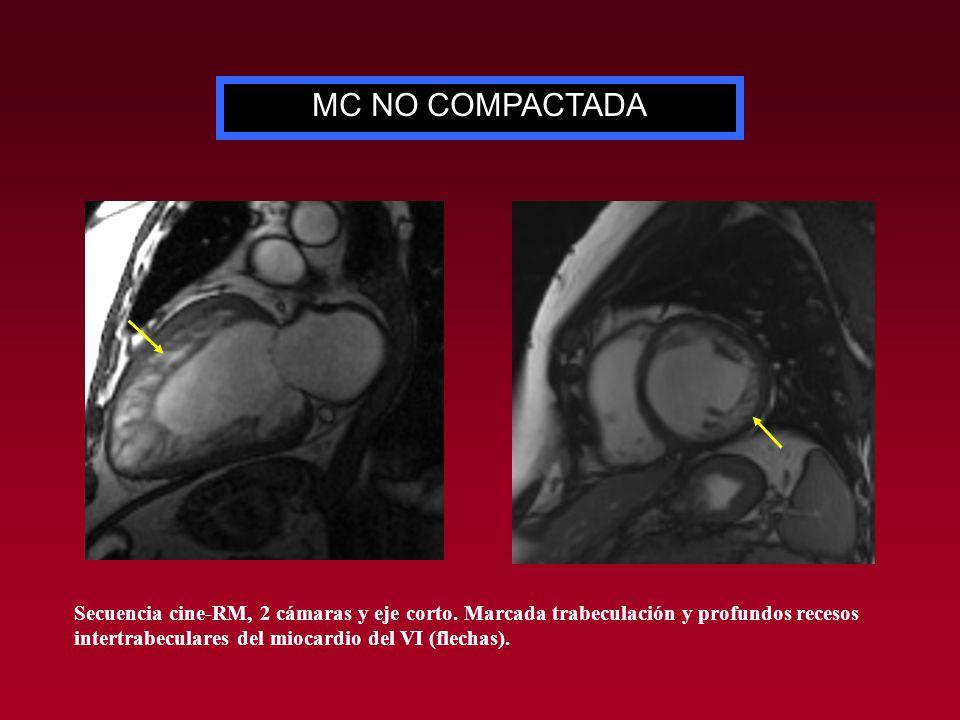 MC NO COMPACTADA Secuencia cine-RM, 2 cámaras y eje corto. Marcada trabeculación y profundos recesos intertrabeculares del miocardio del VI (flechas).