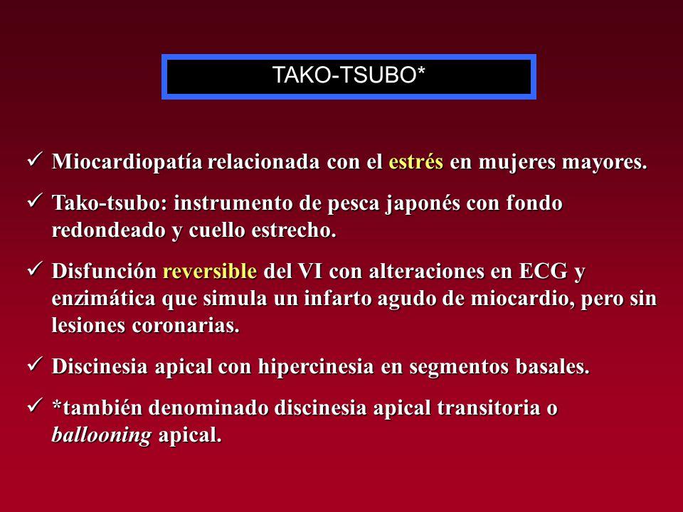 Miocardiopatía relacionada con el estrés en mujeres mayores. Miocardiopatía relacionada con el estrés en mujeres mayores. Tako-tsubo: instrumento de p