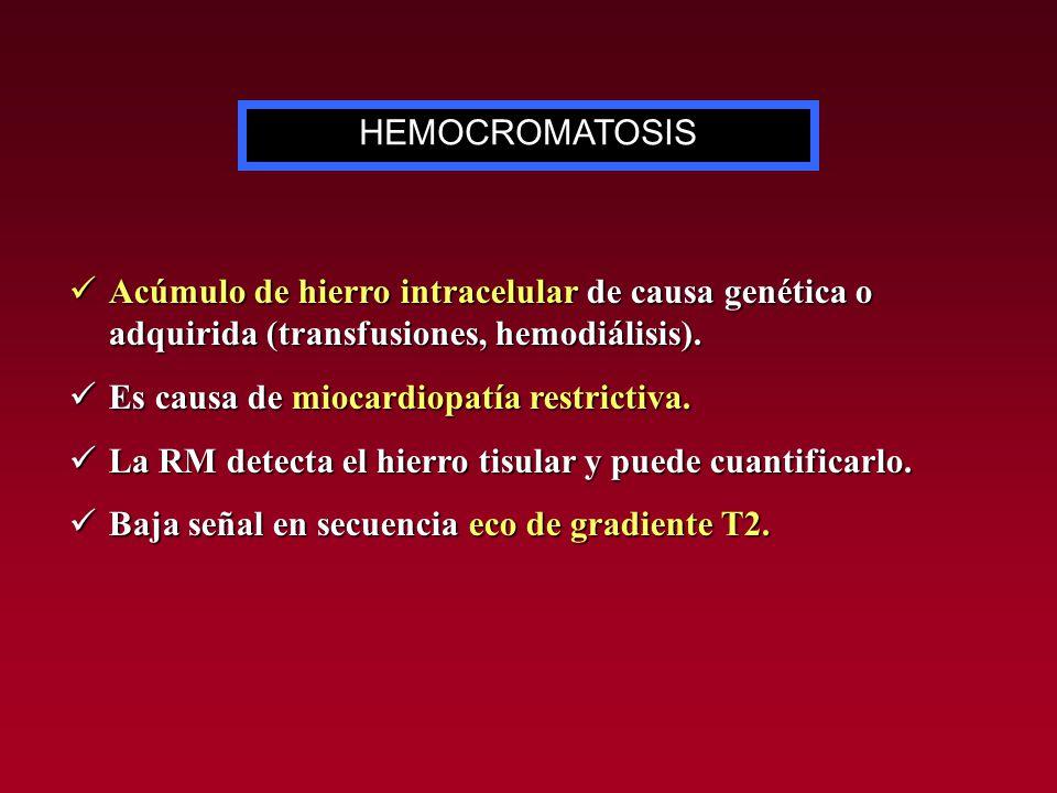 Acúmulo de hierro intracelular de causa genética o adquirida (transfusiones, hemodiálisis). Acúmulo de hierro intracelular de causa genética o adquiri