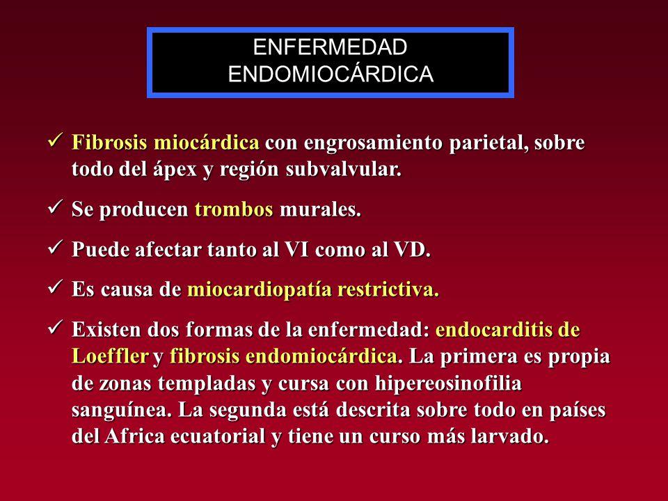 Fibrosis miocárdica con engrosamiento parietal, sobre todo del ápex y región subvalvular. Fibrosis miocárdica con engrosamiento parietal, sobre todo d