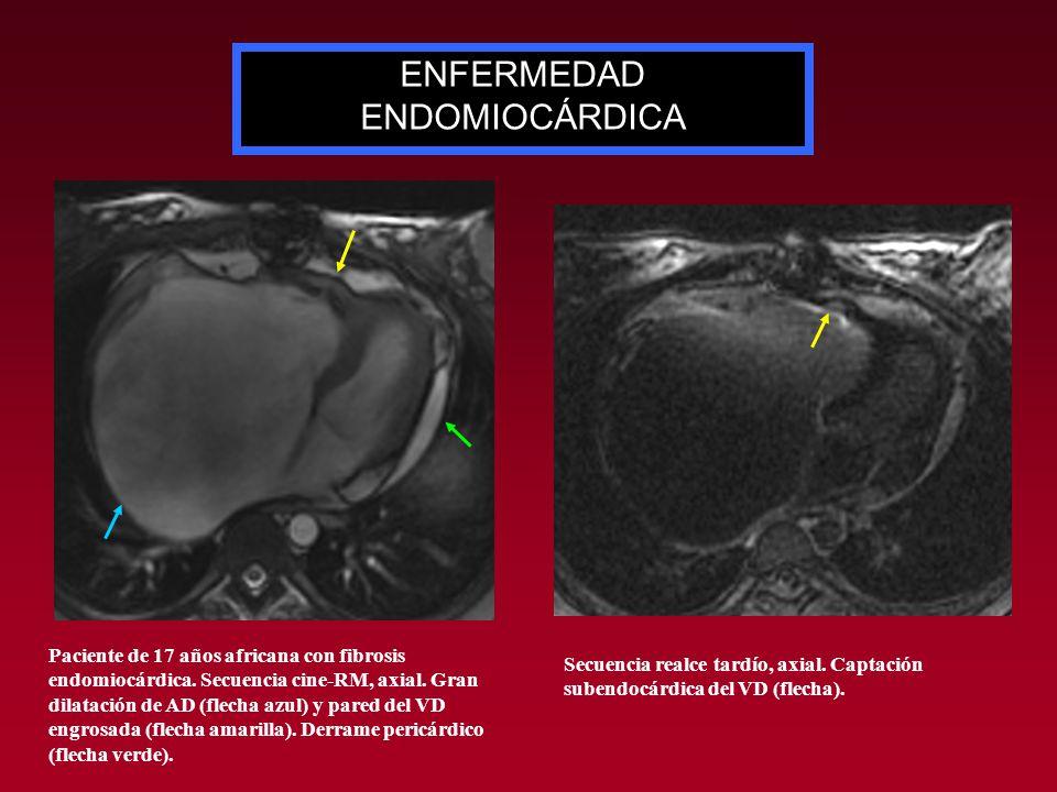Paciente de 17 años africana con fibrosis endomiocárdica. Secuencia cine-RM, axial. Gran dilatación de AD (flecha azul) y pared del VD engrosada (flec