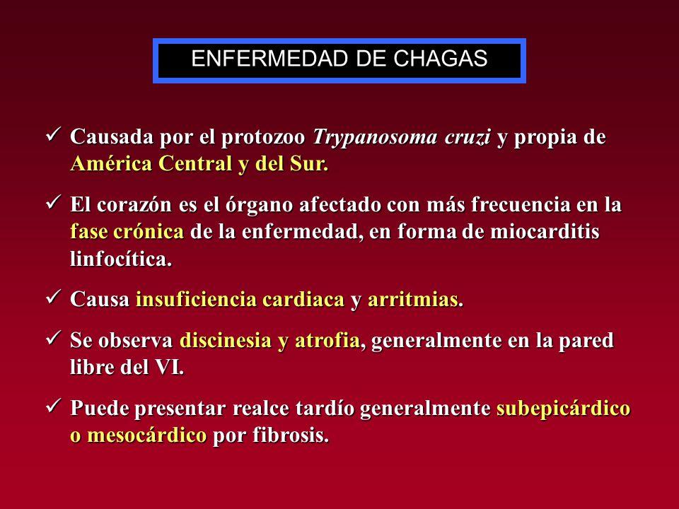 Causada por el protozoo Trypanosoma cruzi y propia de América Central y del Sur. Causada por el protozoo Trypanosoma cruzi y propia de América Central