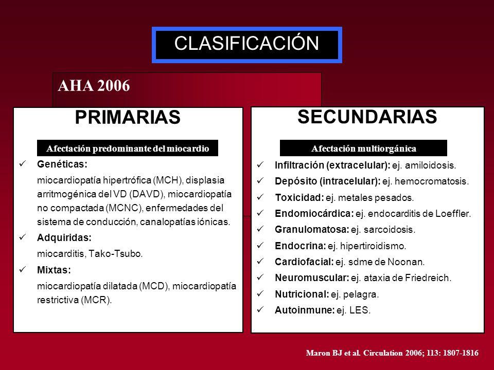 AHA 2006 PRIMARIAS Genéticas: miocardiopatía hipertrófica (MCH), displasia arritmogénica del VD (DAVD), miocardiopatía no compactada (MCNC), enfermeda