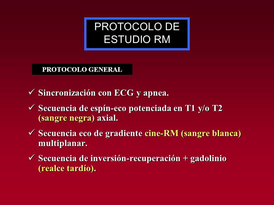 PROTOCOLO DE ESTUDIO RM Sincronización con ECG y apnea. Sincronización con ECG y apnea. Secuencia de espín-eco potenciada en T1 y/o T2 (sangre negra)